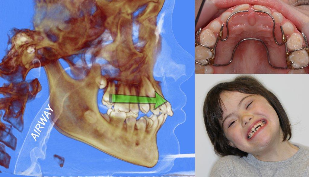 Airway, Apnea, Orthodontics, and OPT